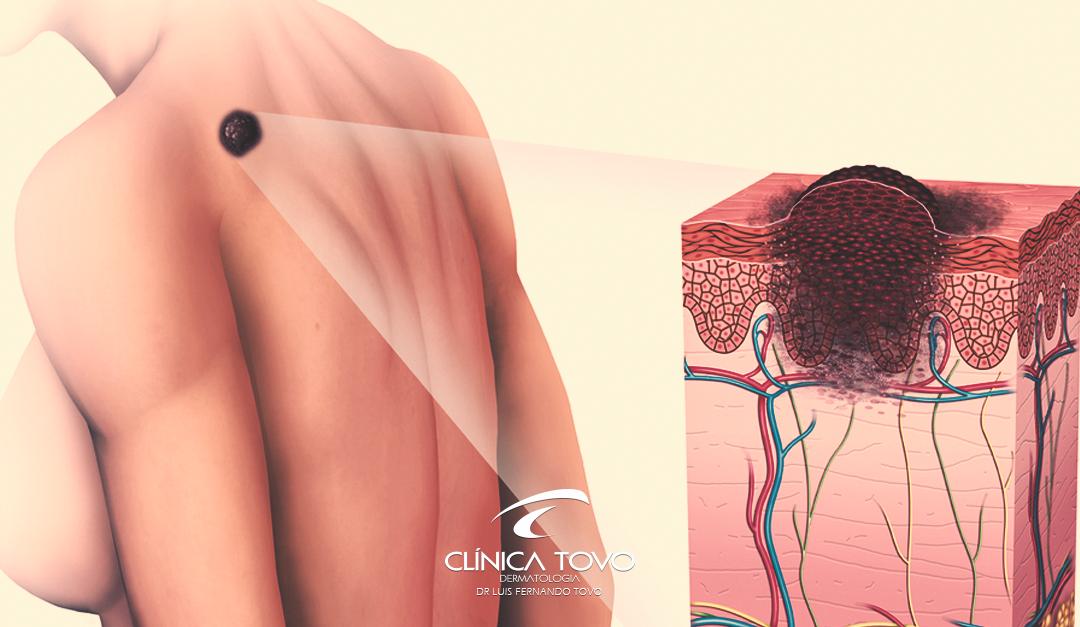 Tipos de Câncer da Pele
