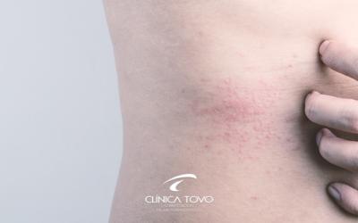 Dermatite Atópica – Nova Droga para Controle