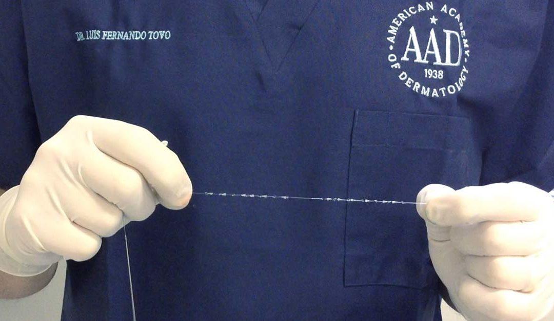 clinicatovodermatologia fios de sustentação x preenchedores faciais