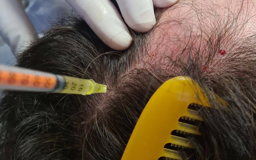 Calvície e queda de cabelo: PRP Plasma Rico em Plaquetas tratamento.